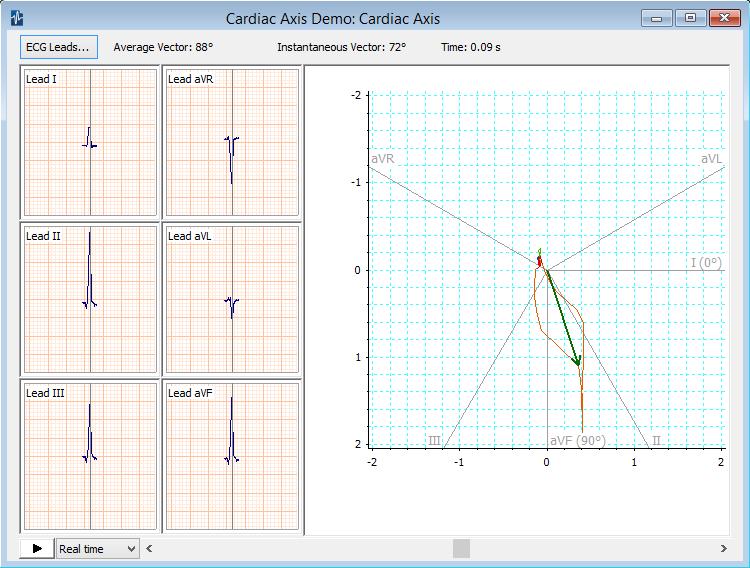 Heart axis calculation.
