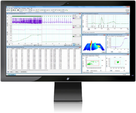 ECG (EKG) Analysis Module for LabChart