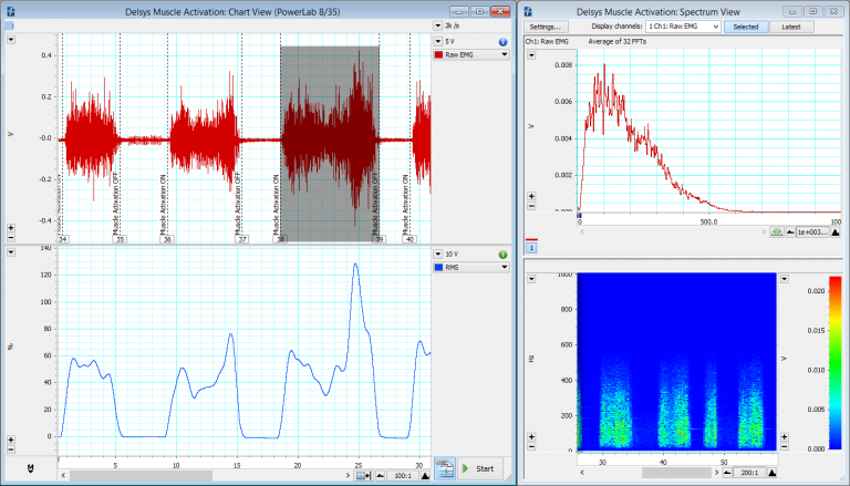 EMG - Electromyography recording shown on the LabChart software.