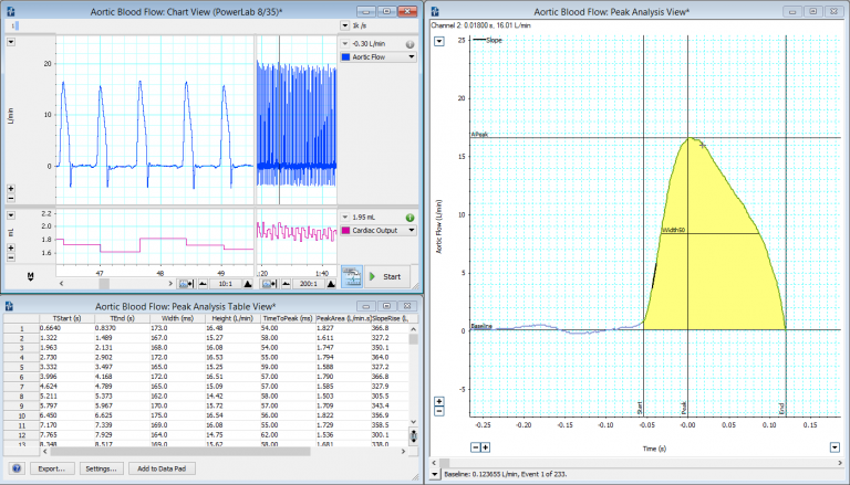 The Peak Analysis Add-On calculates many parameters automatically from a flow signal.