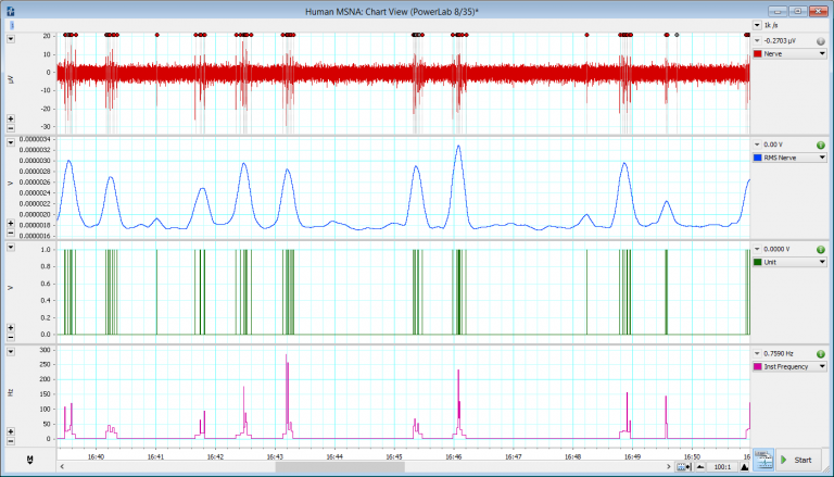 Human Nerve activity data analyzed using LabChart's RMS Arithmetic feature and the Spike Histogram Add-On