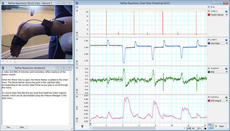 Video and EMG of voluntary and involuntary reflex reactions of the soleus muscle, using our goniometer and tendon hammer , and LabChart's Video Capture Add-On .
