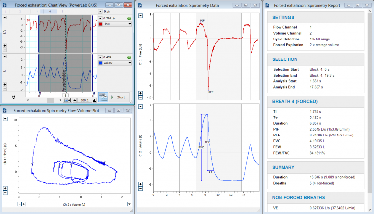Forced exhalation data, flow-volume loops and Spirometry report produced using the Spirometry Add-On for LabChart.