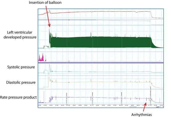 Langendorff perfusion baseline period