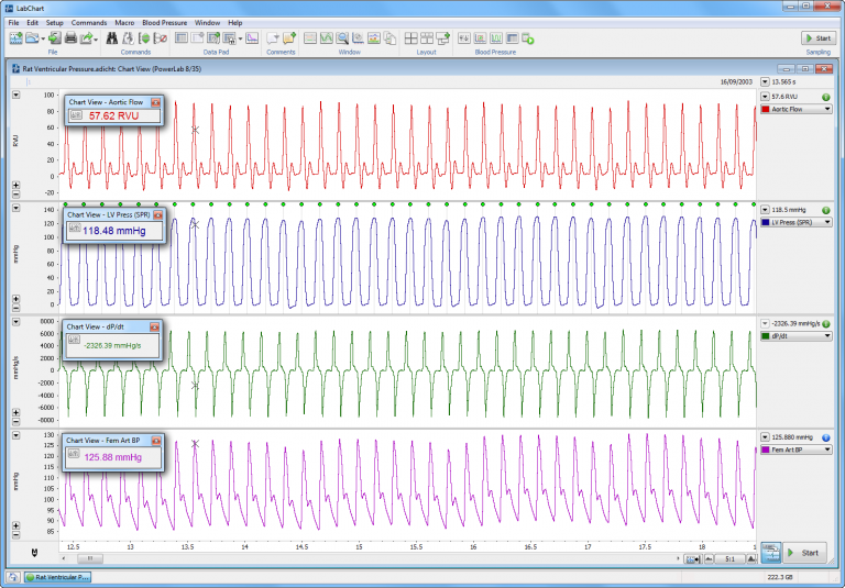 Real time monitoring of Ventricular Pressure and Volume signals, Arterial pressure, and dP/dt calculated using cyclic measurements
