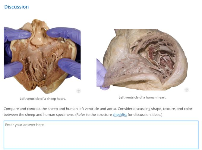 Heart Dissection Lab | Lt Anatomy Collection | ADI