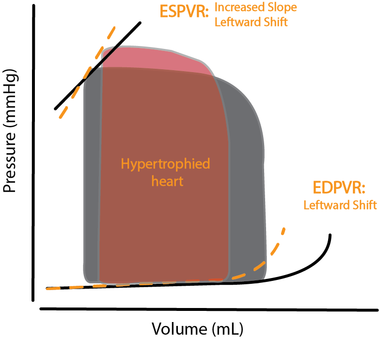 PV Loop of hypertrophied heart