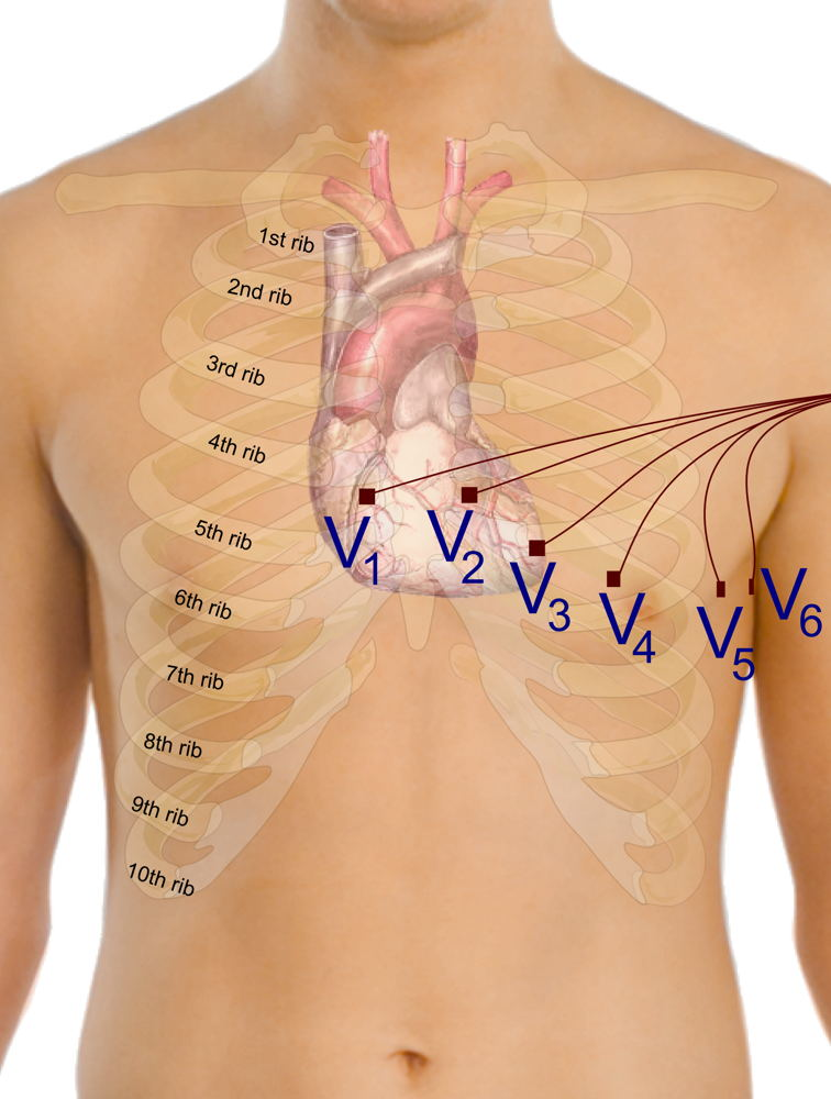 12 lead ECG EKG lead placement using Angle of Louis method