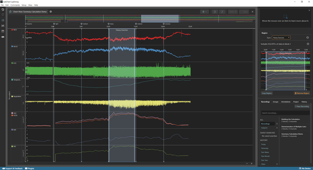 Resulting Channel calculation LabChart Lightning