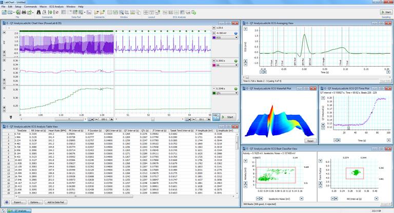 ECG Analysis in LabChart