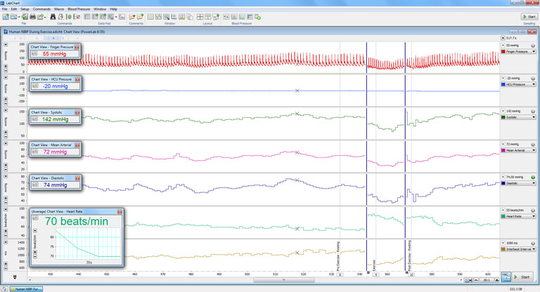Blood Pressure signal recorded with ADInstruments' Human NIBP System