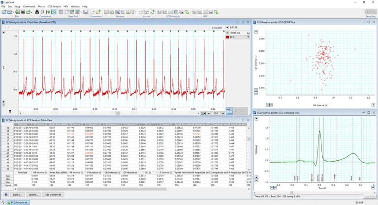 Analysing an ECG signal using LabChart's ECG Analysis Module