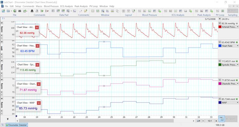 Human NIBP data in LabChart