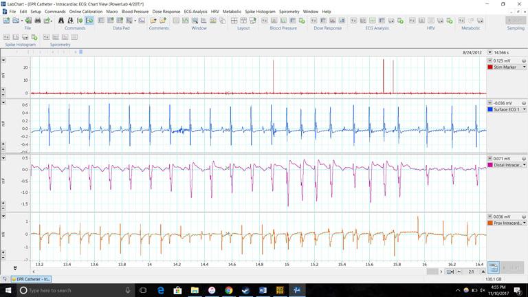Intracardiac ECG in LabChart