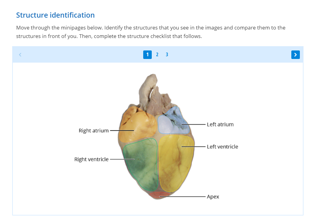 Anterior heart structure identification