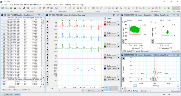 ECG recording from a DSI implant, analyzed by the ECG Analysis Module