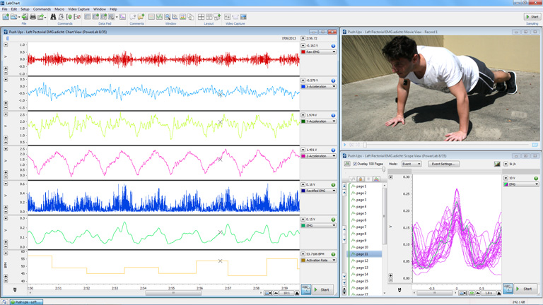 Wireless EMG analysis in LabChart